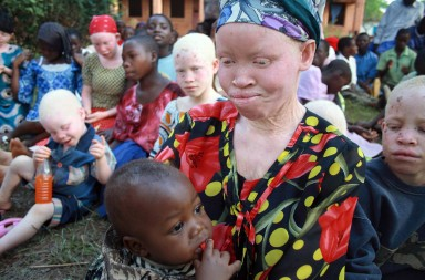 A Tanzanian albino mother and her child attend a picnic organised by the Tanzania Red Cross Society (TRCS) at the government-run school for the disabled in Kabanga, in the west of the country near the town of Kigoma on Lake Tanganyika June 5, 2009. The woman says she fled from her village after hearing that people were looking for albinos to kill for their body parts. The school began to take in albino children late last year after albinos were being killed in Tanzania and neighbouring Burundi by people who allegedly sell their body parts for use in witchcraft. There are now nearly 50 albino children sheltering in Kabanga with their mothers. The school has now completely run out of space, but vulnerable albinos are still being brought in by the police from as much as 200 kilometres away. The Tanzanian government said recently it would take steps to fast-track murder trials involving the killing of albinos. Picture taken June 5.   REUTERS/Alex Wynter/IFRC/Handout    (TANZANIA CONFLICT SOCIETY) FOR EDITORIAL USE ONLY. NOT FOR SALE FOR MARKETING OR ADVERTISING CAMPAIGNS